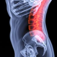Graphic showing an injured spine